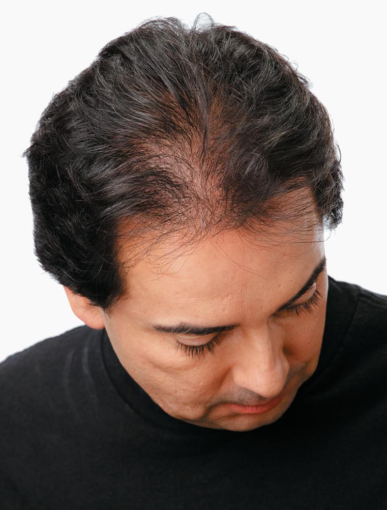 Haarausfall Mann